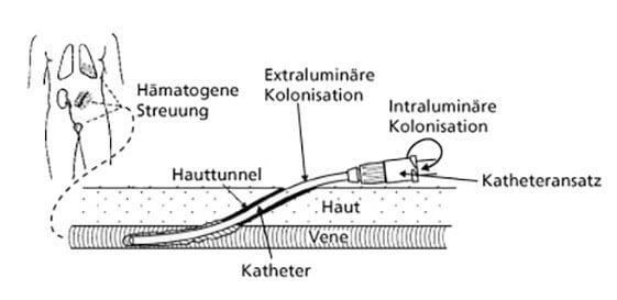 katheter-assoziierter Sepsen